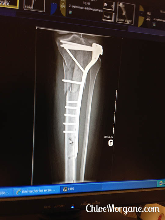Chloe Morgane's x-ray of the hardware to fix her shattered tibial plateau